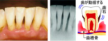 進行した歯周炎