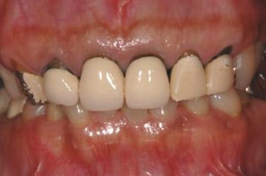 かぶせる治療(前歯)